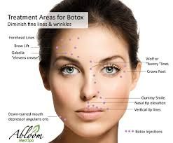 Kuvahaun tulos haulle botox injection sites diagram