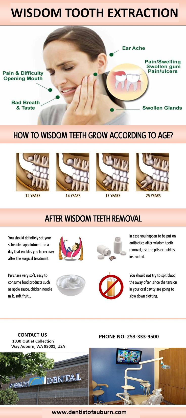 Irate Cosmetic Dentistry Before And After teethwhitening