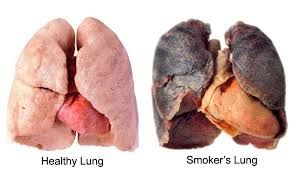 lung cancer accounts or more deaths than any other form of cancer and a leading cause of lung cancer is cigarette smoking. Cigarette smoke contains at least 60 carcinogenic compounds. 3 Forms: squamous-cell carcinoma adenocarcinoma small-cell (oat-cell) carcinoma