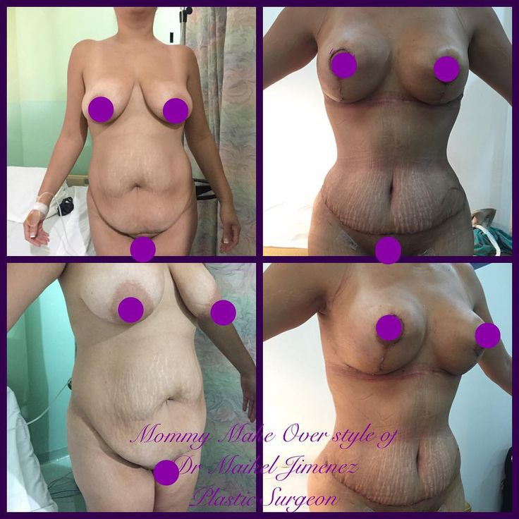 Mommy Make Over, not implant, 2 week after surgery by Dr Maikel. How the hack this can be happen in 2 week wowww he is a tummy tuck magician