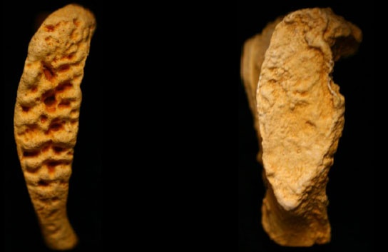 Forensic Anthropology - age at death from pubic symphysis analysis (young and billowing face on the left vs fine grained bony face in an older individual on the right).