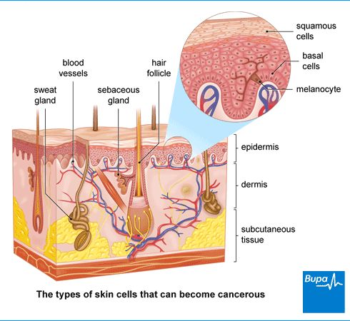 42 best integumentary system images on pinterest school projects information from bupa about skin cancer find out about melanoma and non melanoma skin cancers basal cell carcinoma and squamous cell carcinoma ccuart Choice Image