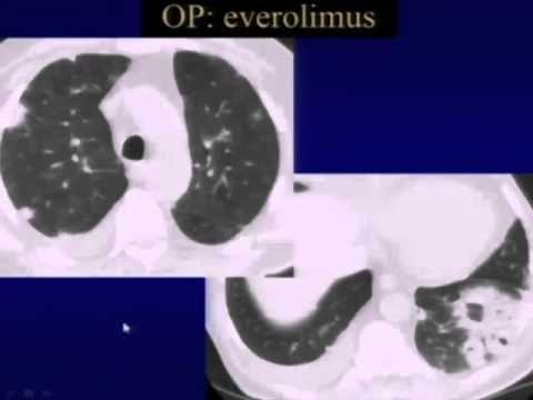 59   Organizing Pneumonia
