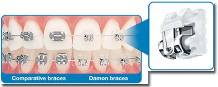 dientes y brackets metálicos