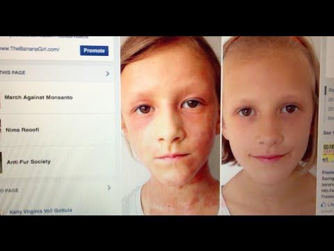 Amazing Raw Vegan skin transformation before and after - YouTube