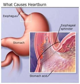 Effective Natural Cures For Heartburn.  However the peppermint should be used with caution.  It can relax the sphincter that keeps the acid in the stomach,  allowing it to go up into the esophagus.
