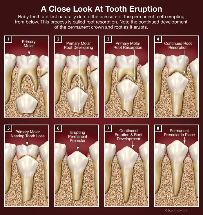 483 best Dental- future job! images on Pinterest Dental, Dental - school health aide sample resume
