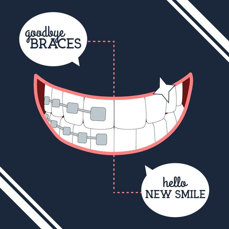 ¡Es increíble la satisfacción cuando le quitamos los brackets a nuestros pacientes y vemos cómo sonríen de contentos! :) ¡Adiós, brackets... ¡hola sonrisa nueva!