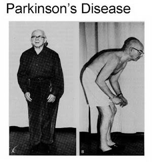 Pestisida Menyebabkan Parkinson