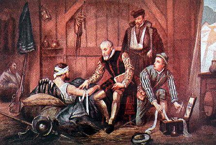 Ambroise Paré, le père de la chirurgie moderne