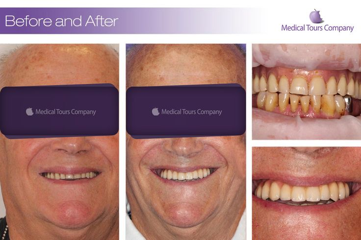 Dental implants / Dental crowns / Dental aesthetics