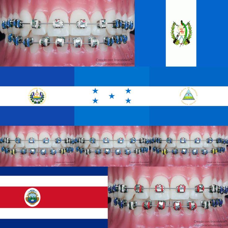 #diadelaindependencia #díadelaindependencia #centroamérica #centroamerica #centralamerica #independenceday #guatemala #elsalvador #honduras #nicaragua #costarica #guatemalacity #sansalvador #tegucigalpa #managua #sanjose #spanish #espanol #español #dental #dentista #odontologia #odontología #ortodoncia #ortodoncista #frenos #brackets #frenillos #color #colores