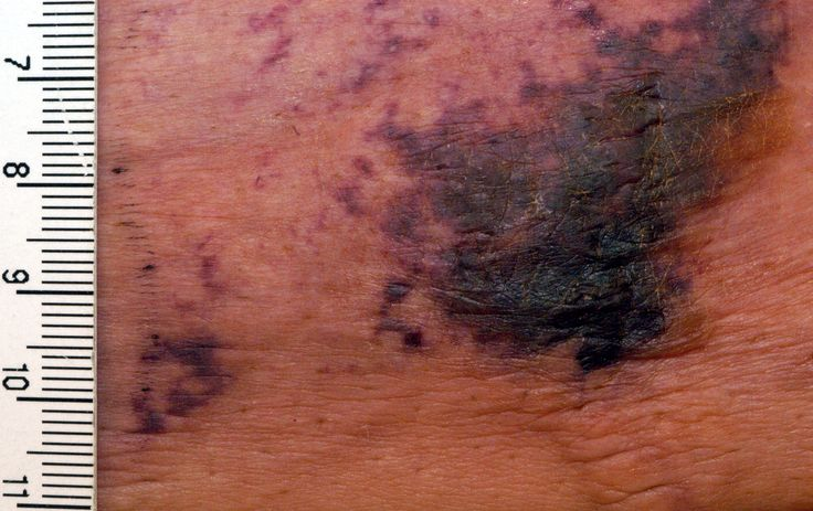 Calciphylaxis - Wikipedia skin lesions potentially leading to sepsis or death caused by complex imbalance in calcium and phosphorous