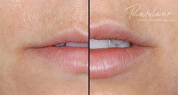 Restylane® Silk is a dermal filler designed specifically to provide natural-looking results in the lips and skin surrounding the mouth.