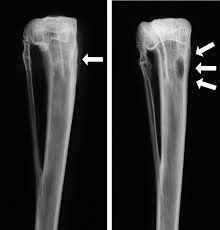 Pengobatan Infeksi Tulang Dengan Cara Rasulullah Shalallahu'alaihiwassalam, baca lebih lanjut hanya di link berikut ini  http://www.beritasehat.net/2014/09/pengobatan-infeksi-tulang-dengan-cara.html