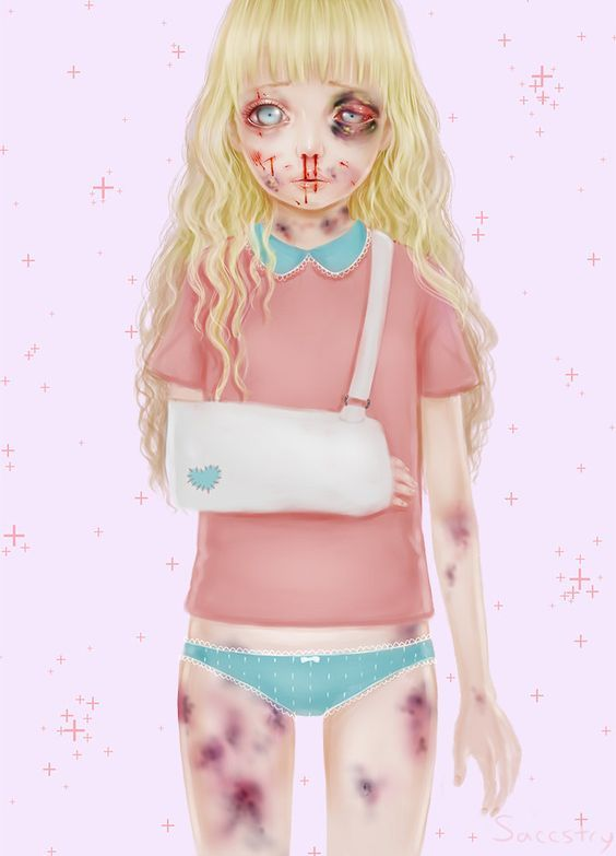 ' Injury Doll  ' by Saccstry