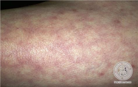 Sjogren's Syndrome and Livedo Reticularis http://www.mayoclinic.org/livedo-reticularis/expert-answers/faq-20057864