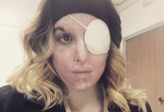 Italian acid attack victim shares defiant selfie showing her scars