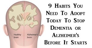 Health Fitness & Beauty: 9 Habits You Need To Adopt Today To Stop Dementia ...