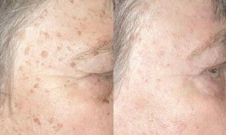 CİLT LEKELERİ NASIL GEÇER Erkeklerler de de görülmekle beraber, özellikle kadınlarda yüz, el ve göğüs dekoltesinde, ciltte bulunan melanin pigmentinin artması sonucu kahverengi lekeler oluşur.Cilt lekelerinde uygulanan yöntemler, genellikle doktor gözetiminde uygulanırsa kalıcı çözüm olur. CİLT LEKELERİ NEDEN OLUŞUR? Aslında kadınlarda bulunan östrojen hormonu, cilt lekelerinin de temel sebebidir. Uzun süre zararlı güneş ışınlarına maruz …