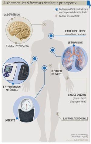 Les principaux facteurs de risque d'Alzheimer | Actualité | LeFigaro.fr - Santé