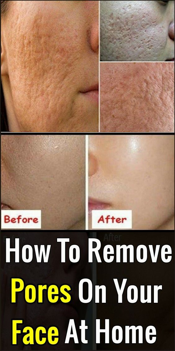 How To Remove Pores On Your Face At Home ( Only Ta…