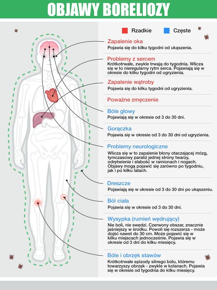 Objawy boreliozy