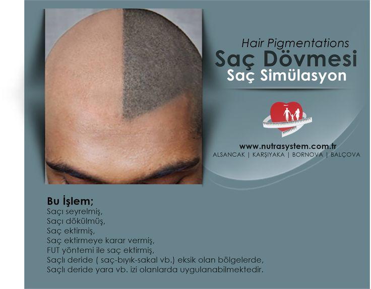 Saç Dövmesi | Hair Pigmentations | Saç Simülasyon  http://www.nutrasystem.com.tr/cilt-yenileme-botoks-dolgu-iple-yuz-asma-cilt-bakimi-peeling/izmir-sac-dovmesi/