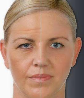 Homemade Wrinkle Removers That Work ~ Remedies Park