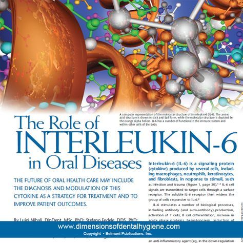 Dimensions of Dental Hygiene January 2013 Issue - The Role of  INTERLEUKIN-6  in Oral Diseases - THE FUTURE OF ORAL HEALTH CARE MAY INCLUDE  THE DIAGNOSIS AND MODULATION OF THIS  CYTOKINE AS A STRATEGY FOR TREATMENT AND TO  IMPROVE PATIENT OUTCOMES. By Luigi Nibali, DipDent, MSc, PhD; Stefano Fedele, DDS, PhD;  Francesco D'Aiuto, DMD, PhD, MClinDent;  and Nikolaos Donos, DDS, MS, FHEA, FRCSEng, PhD #dentalhygiene #dimensionsofdentalhygiene #interleukin6 #oraldiseases #xerostomia