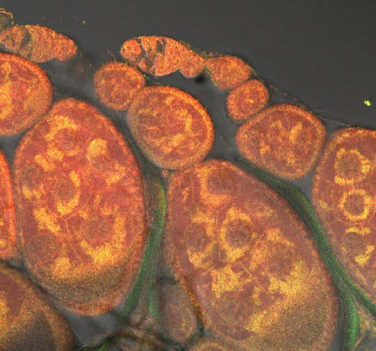 Your cells need energy to function, and providing that energy is the job of mitochondria, seen here stained dark orange in fruit fly ovary cells. These small but serious structures convert energy from food into forms that the cell can use.