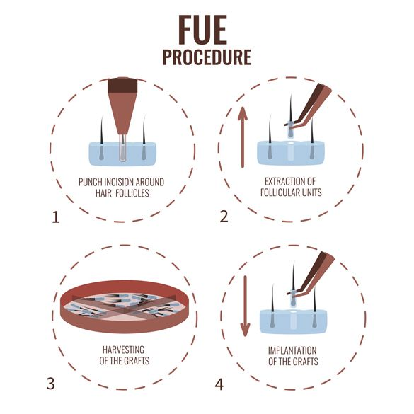 #FUE #hair #transplant #surgery involves the best technique to provide your natural results with hair transplant. You can follow the following link, to get more knowledge.