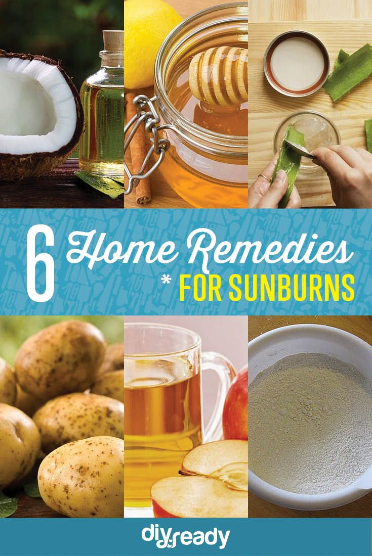 6 Home Remedies for Sunburn | Natural and Effective Ways to Heal Up Fast From Sunburn by DIY Ready at http://diyready.com/6-home-remedies-for-sunburn/