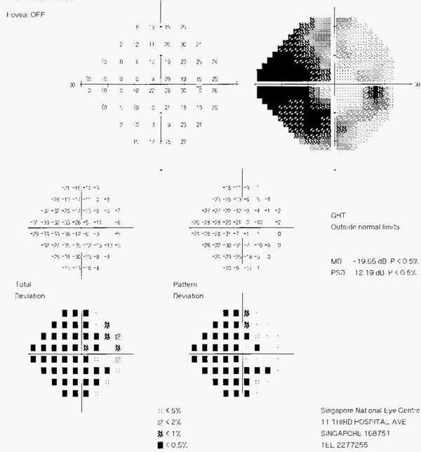 Learning about all that glaucoma testing seems like a reasonable thing to do after a diagnosis. This one measures something called: Visual Field Defects which can show blind spots or tunnel vision.