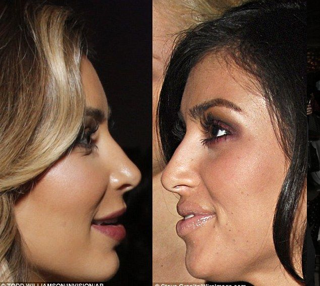 kim kardashian nose job before and after | kim k before and after So Kim Kardashian Had A Nose Job?