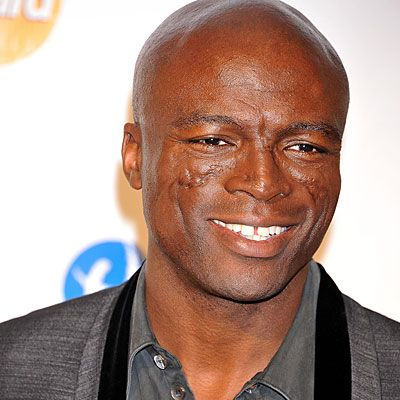 Seal - The scars on the singer's face are the result of discoid lupus erythematosus, a type of lupus involving only the skin. Discoid lupus typically causes sores on the face and scalp but can affect the skin anywhere on the body. It can also cause hair loss. People with discoid lupus are often sensitive to ultraviolet light, and need to be careful about sun exposure. Twitter@seal
