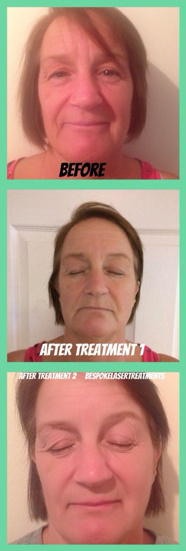 Carbon Blast Rejuvenation Laser Treatment. Labelled the latest non-evasive celebrity face lift! Listed in the top 10 beauty treatments in LA! https://www.facebook.com/BespokeLaserTreatments #BespokeLaserTreatments