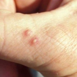 I can use this so often, I am  bitten nearly every week. 10 ant bite home remedies