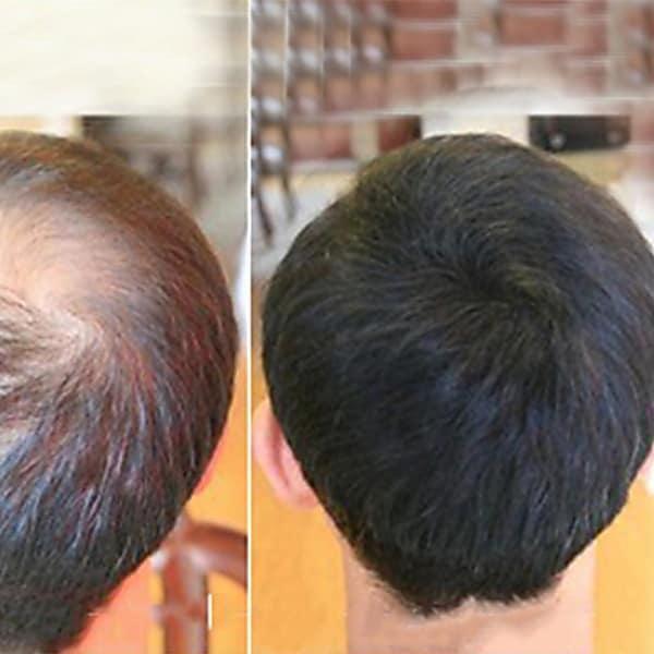 Hair Loss Problem Get Solved By Ayurvedic Hair Oil Made In Kerala Ayurvedic Hair Oil Problem Hair Loss Hair Oil