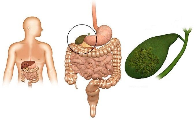 10 Makanan Sehat untuk Penderita Batu Empedu yang Menyehatkan