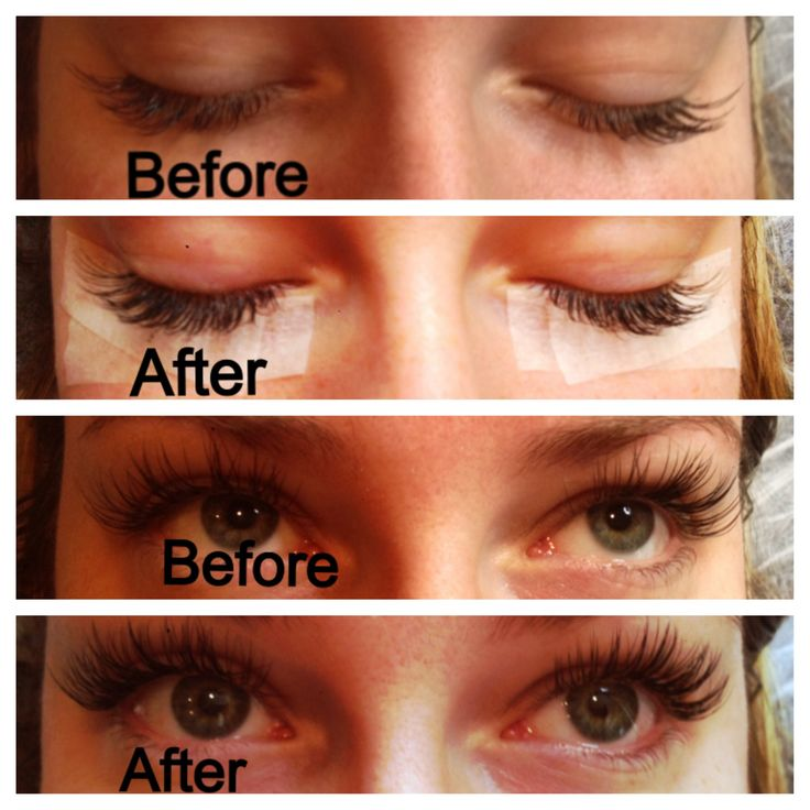 Before and After (Two week fill) by Merry. Xtreme Lashes