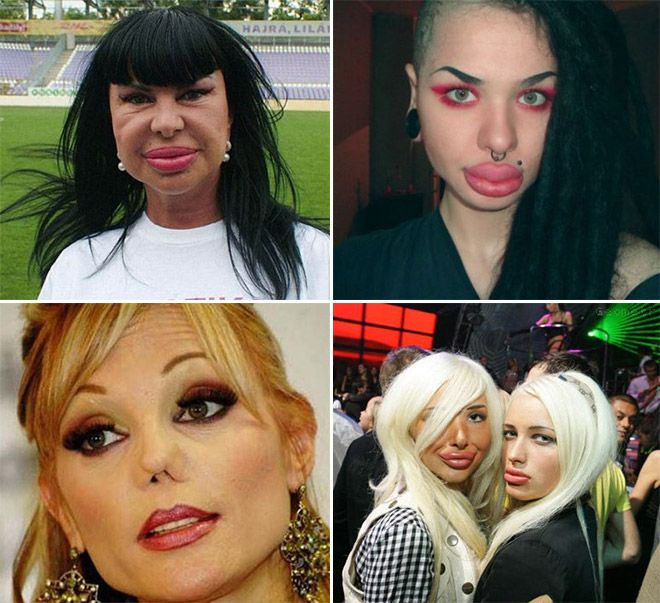 Image result for plastic surgery wtf