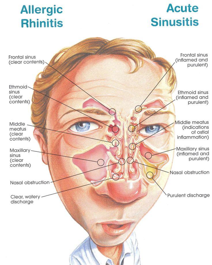 allergic rhinitis vs acute sinusitis