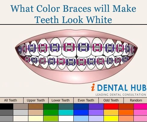 25 best ideas about braces colors on pinterest nail color combos nail color combinations and - Changes greener home can make right away ...