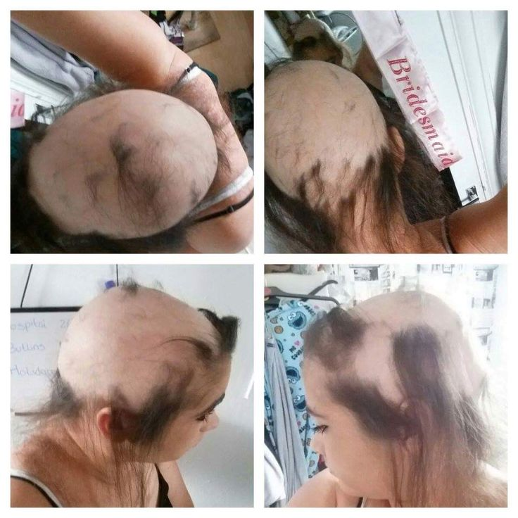 105 best hair loss solutions images on pinterest anna blue growing stronger woman claims her toxic relationship gave her alopecia but its grown pmusecretfo Image collections