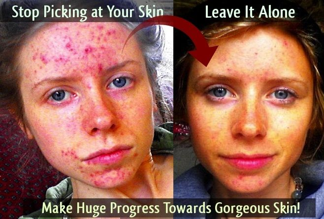 before and after | Skin Picking Face | Pinterest