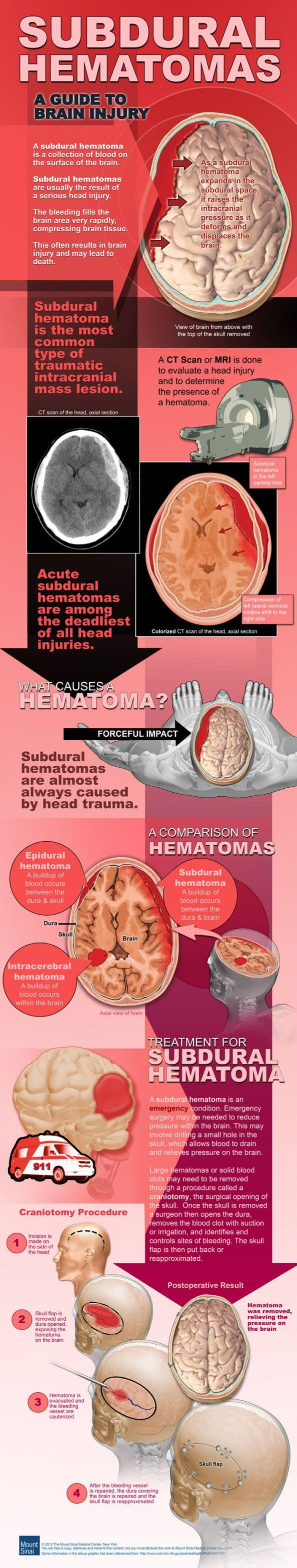 Subdural hemotoma - good graphic