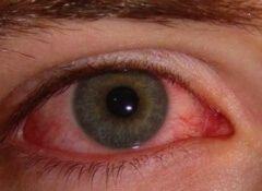 You searched for rode gezwollen ogen - Gezonder Leven