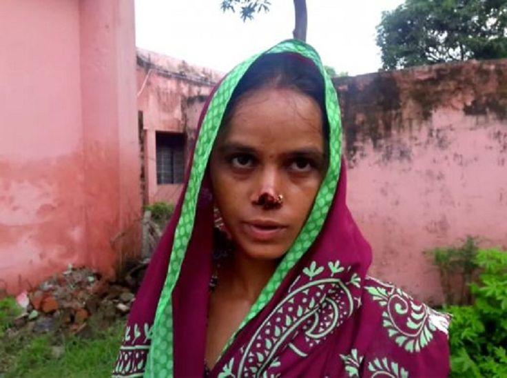 Индиец отряза носа си жена си - не му дала зестра (СНИМКИ 18+) - http://novinite.eu/indiets-otryaza-nosa-si-zhena-si-ne-mu-dala-zestra-snimki-18/