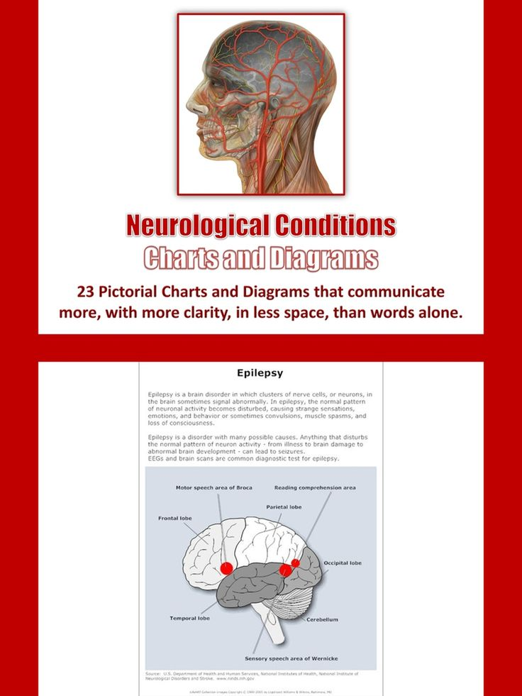 Neurological Conditions Charts and Diagrams with Private ...